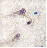 Immunohistochemistry (Formalin/PFA-fixed paraffin-embedded sections) - PIWIL1 antibody (ab76692)