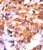 Immunohistochemistry (Formalin/PFA-fixed paraffin-embedded sections) - PKM2 antibody - C-terminal (ab76695)
