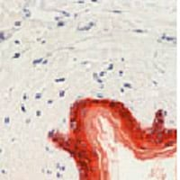 Immunohistochemistry (Formalin/PFA-fixed paraffin-embedded sections) - HMW Cytokeratin antibody [CK 211 (AE3)] (ab76714)