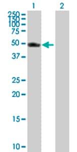 Western blot - VRK1 antibody (ab76864)