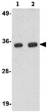 Western blot - POLR3F antibody (ab76951)
