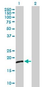 Western blot - TAF8 antibody (ab77059)