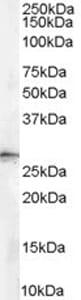 Western blot - 14-3-3 sigma antibody (ab77187)