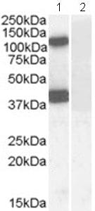 Western blot - EPB4IL2 antibody (ab77263)