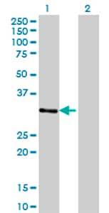 Western blot - ZNF397 antibody (ab77332)
