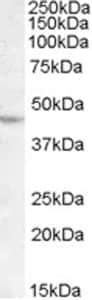 Western blot - Lhx2 antibody (ab77368)