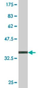 Western blot - ACTRT2 antibody (ab77418)
