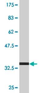 Western blot - TPD52 antibody (ab77459)