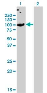 Western blot - SLC26A2 antibody (ab77464)