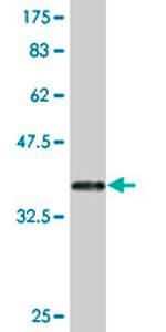 Western blot - FGL2 antibody (ab77642)