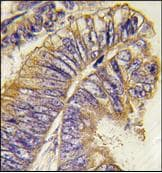 Immunohistochemistry (Formalin/PFA-fixed paraffin-embedded sections) - PHLPP2 antibody - N-terminal (ab77665)