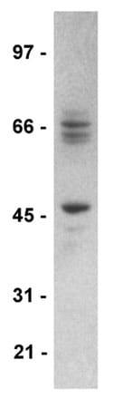 Western blot - STEP / PTPN5 antibody [23E5] (ab77807)