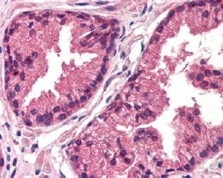 Immunohistochemistry (Formalin/PFA-fixed paraffin-embedded sections) - Thymidine Kinase 1 antibody (ab78071)