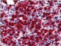 Immunohistochemistry (Formalin/PFA-fixed paraffin-embedded sections) - CDA antibody (ab78231)