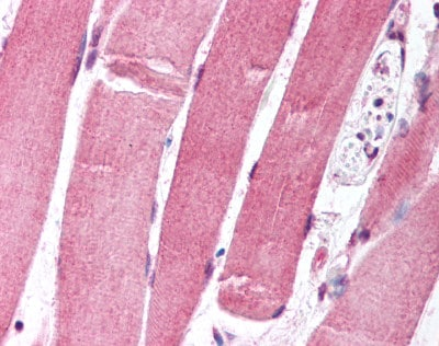 Immunohistochemistry (Formalin/PFA-fixed paraffin-embedded sections) - FOXO1A antibody [7h3] (ab78382)