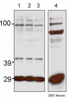 Western blot - FLIP delta + gamma antibody (ab8423)