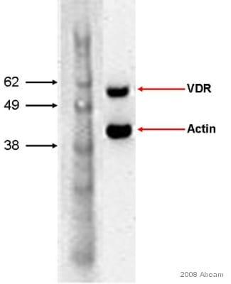 Western blot - Vitamin D Receptor  antibody [9A7] (ab8756)