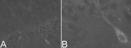 Immunocytochemistry/ Immunofluorescence - NCAM antibody [123C3] (ab9272)