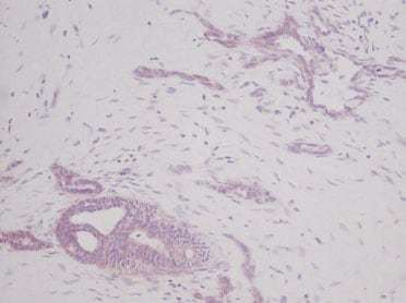 Immunohistochemistry (Formalin/PFA-fixed paraffin-embedded sections) - SCF antibody (ab9716)