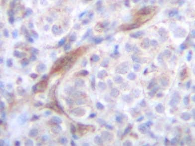Immunohistochemistry (Formalin/PFA-fixed paraffin-embedded sections) - TRAIL antibody (ab9959)