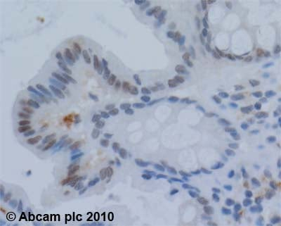 Immunohistochemistry (Formalin/PFA-fixed paraffin-embedded sections) - Werner's syndrome helicase WRN antibody (ab200)
