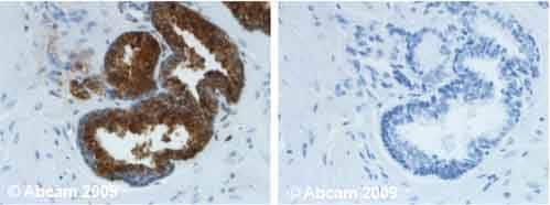 Immunohistochemistry (Formalin/PFA-fixed paraffin-embedded sections) - Anti-Prostate Specific Antigen antibody [8301] (ab403)