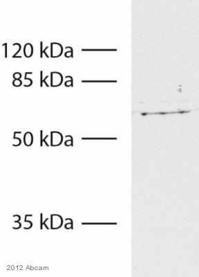 Western blot - Anti-Tyrosinase antibody [T311 ] (ab738)
