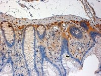 Immunohistochemistry (Formalin/PFA-fixed paraffin-embedded sections) - CSK antibody (ab744)