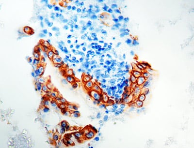 Immunohistochemistry (Formalin/PFA-fixed paraffin-embedded sections) - Anti-Cytokeratin 8 antibody [35bH11] (ab758)