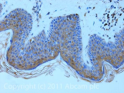 Immunohistochemistry (Formalin/PFA-fixed paraffin-embedded sections) - Anti-MelanA antibody [A103] (ab785)