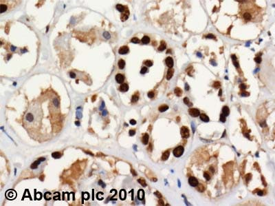 Immunohistochemistry (Formalin/PFA-fixed paraffin-embedded sections) - SET antibody (ab1183)