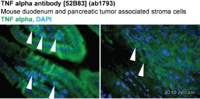 Immunohistochemistry (Frozen sections) - TNF alpha antibody [52B83] (ab1793)