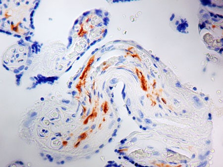 Immunohistochemistry (Formalin/PFA-fixed paraffin-embedded sections) - Anti-Factor XIIIa antibody [AC-1A1] (ab1834)