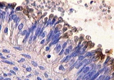 Immunohistochemistry (Formalin/PFA-fixed paraffin-embedded sections) - MUC16 antibody [X325] (ab10033)