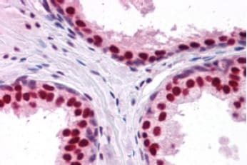 Immunohistochemistry (Formalin/PFA-fixed paraffin-embedded sections) - Anti-DDX5 antibody (ab10261)