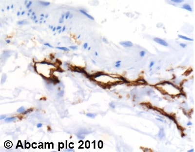 Immunohistochemistry (Formalin/PFA-fixed paraffin-embedded sections) - Anti-LYVE1 antibody (ab10278)