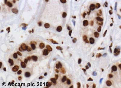 Immunohistochemistry (Formalin/PFA-fixed paraffin-embedded sections)-hnRNP C1 + C2 antibody [4F4](ab10294)