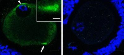 Immunocytochemistry/ Immunofluorescence - PSTAIR antibody [PSTAIR] (ab10345)