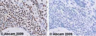 Immunohistochemistry (Formalin/PFA-fixed paraffin-embedded sections)-KAP1 antibody(ab10484)