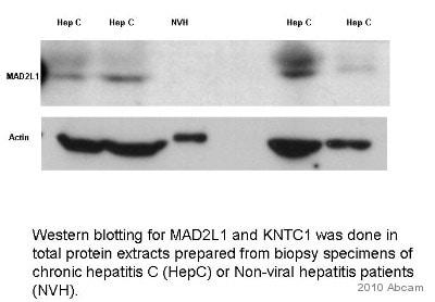 Western blot - Mad2L1 antibody [17D10] (ab10691)