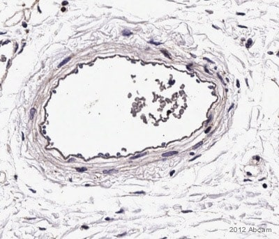 Immunohistochemistry (Formalin/PFA-fixed paraffin-embedded sections) - Anti-Integrin alpha 2 antibody [HAS-3] (ab10800)