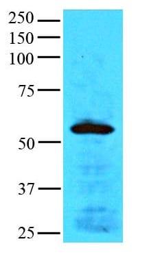 Western blot - PHD2 / prolyl hydroxylase antibody [AT1E9] (ab100840)