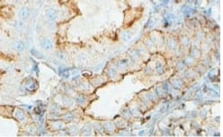 Immunohistochemistry (Formalin/PFA-fixed paraffin-embedded sections) - ACTBL2 antibody (ab100869)