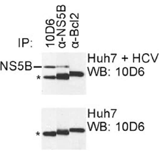 Immunoprecipitation - Anti-HCV subtype 1b NS5B antibody [10D6] (ab100895)