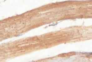 Immunohistochemistry (Formalin/PFA-fixed paraffin-embedded sections) - HLCS antibody (ab100925)