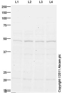 Western blot - IRX5 antibody (ab100939)
