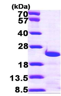 SDS-PAGE - Centrin 3 protein (ab100940)