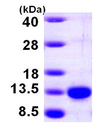 SDS-PAGE - PCBD1 protein (His tag) (ab100942)
