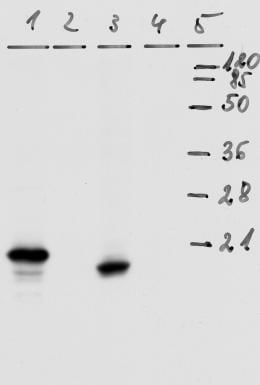 Western blot - HPV18 E7 antibody [8E2] (ab100953)
