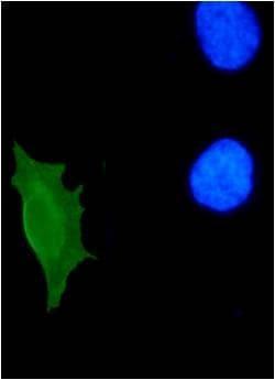 Immunocytochemistry/ Immunofluorescence - HPV11 E7 antibody [9H5] (ab100967)